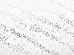 用心调节癫痫患者病情,让生活更健康